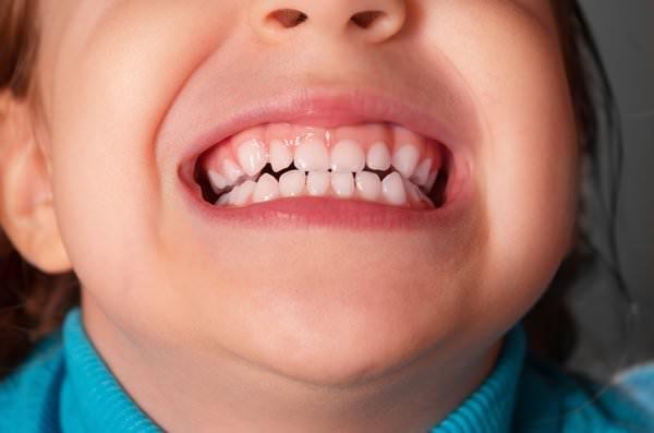 Сонник вставные зубы выпали