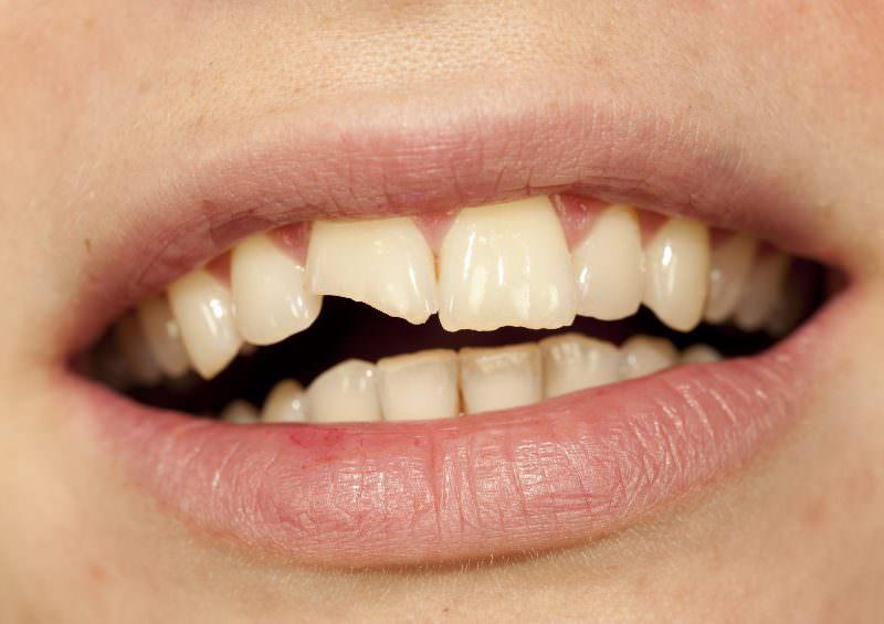 Если во сне видеть сломанный зуб
