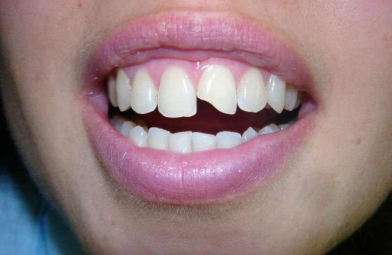 Сонник отломился зуб без крови