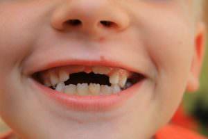 Что значит если приснились зубы с кровью