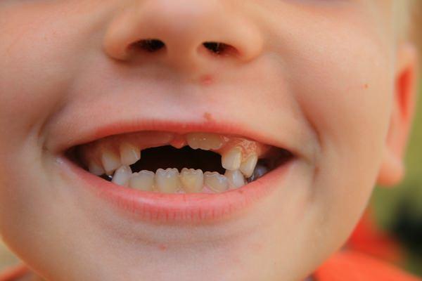 Сонник вырос зуб приснилось к чему снится вырос зуб во