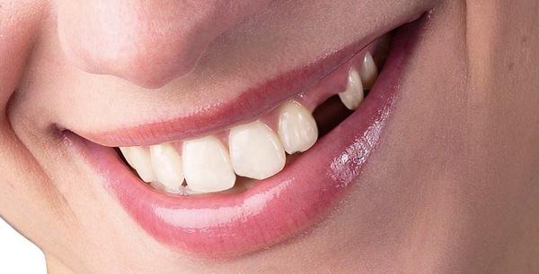 К чему снится выпадение зубов и есть ли риск остаться беззубым в реальность?