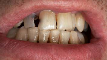 к чему снятся гнилые зубы