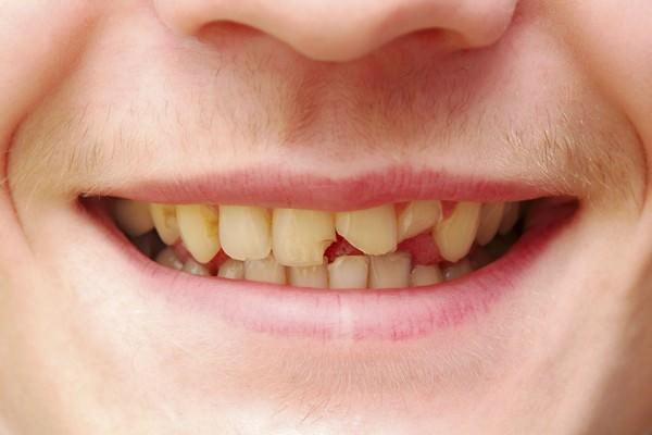 К чему снятся гнилые зубы: ответы и значения