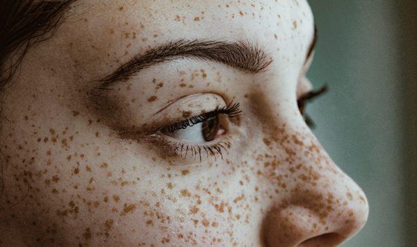 Приснились веснушки на лице - что это значит?